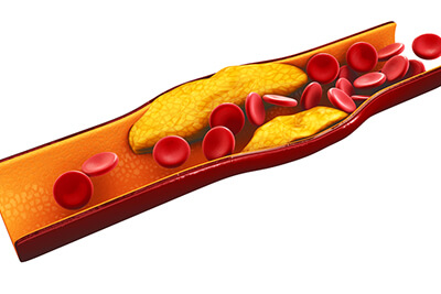 3d Illustration of blood cells with plaque buildup of cholesterol isolated white